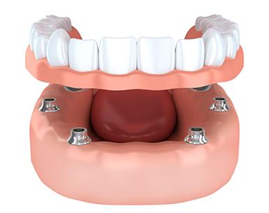 Computer rendering of implant supported dentures procedure